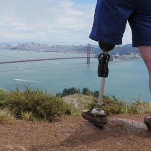 LegWorks: Bold movement breaking down barriers to mobility